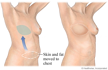 Picture of DIEP flap for breast reconstruction