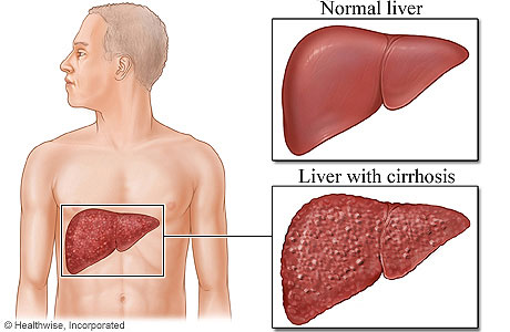Picture comparing normal liver to liver with cirrhosis