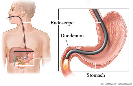 Picture of upper gastrointestinal endoscopy