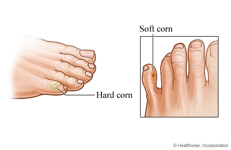 Picture of corns on toes and bottom of foot