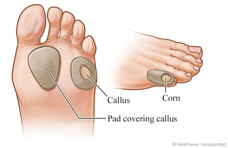Picture of protective pads for calluses and corns