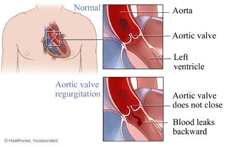 Picture of normal aortic valve and aortic valve regurgitation
