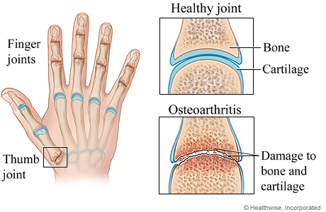 Picture of osteoarthritis of the hand