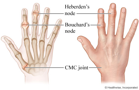 Picture of Heberden's and Bouchard's nodes