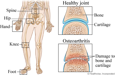 Picture of joints commonly affected by osteoarthritis
