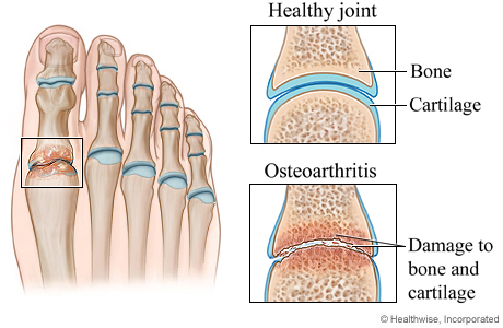 Picture of osteoarthritis of the foot