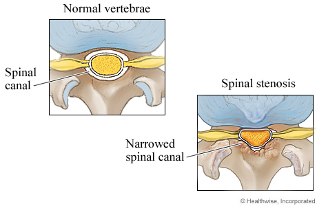 Picture of a normal spinal canal and a narrowed spinal canal (cross section)