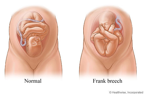 Pictures of normal position and frank breech position of fetus