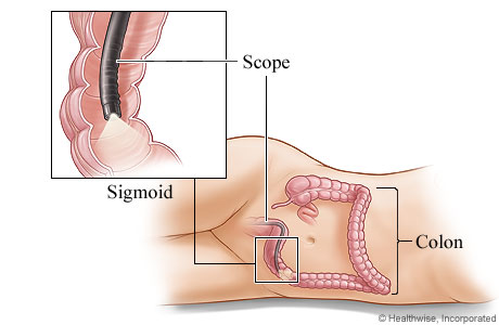 Picture of the sigmoidoscope in the sigmoid colon