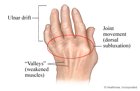 Picture of rheumatoid arthritis in the hand