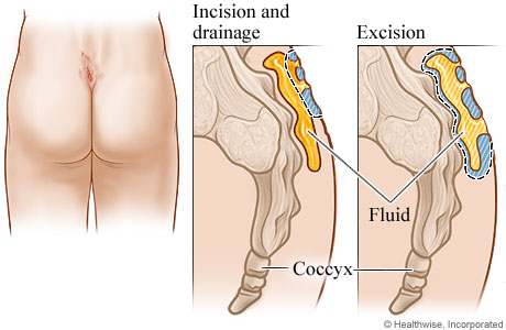 Picture of treatment methods for a pilonidal cyst