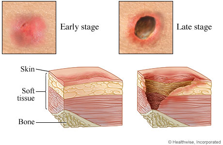 Pictures of early-stage and late-stage pressure sores