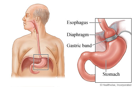 Picture of where a gastric band is placed