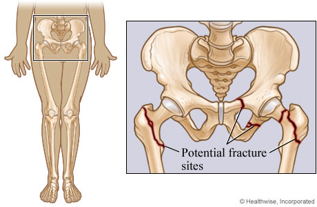 Potential pelvic and hip fracture sites