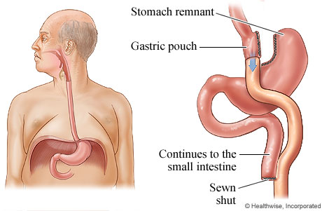 Picture of gastric bypass surgery for obesity