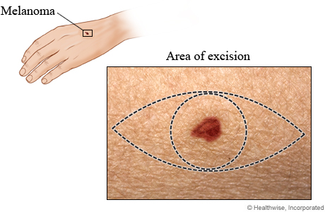 Area of excision for melanoma