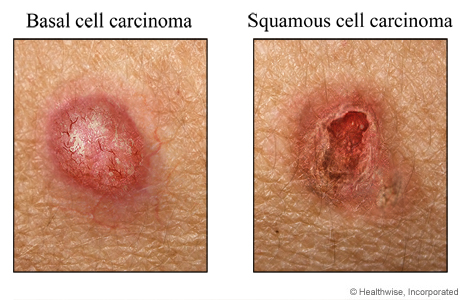 Examples of basal cell carcinoma and squamous cell carcinoma