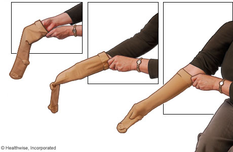 Picture of how to put on compression stockings: Step 1