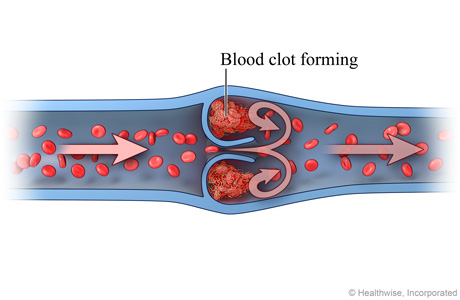 Picture of a blood clot forming