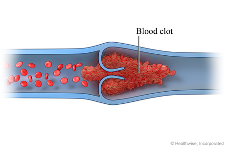 Picture of a blood clot in a vein