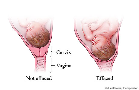 Picture of cervical effacement