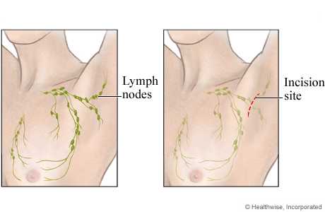 Picture of the location for an open lymph node biopsy