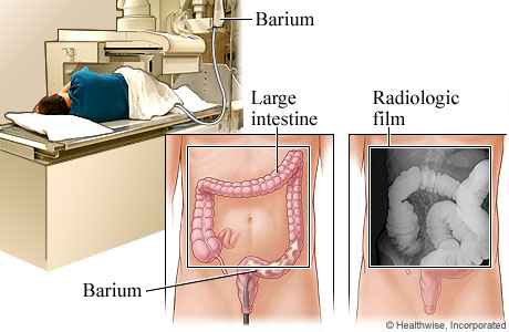 Picture of a barium enema and how it looks on an X-ray