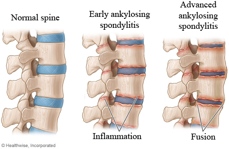 Picture of the stages of ankylosing spondylitis in the spine