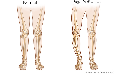 Picture of normal legs and bowed legs from Paget's disease