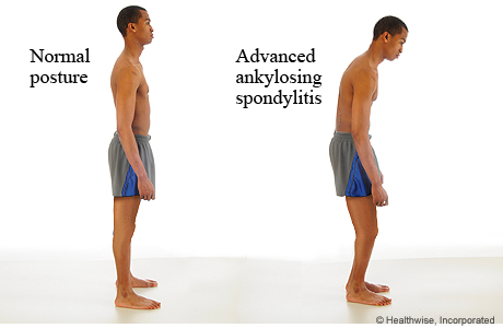 Pictures of a man with normal posture and with the posture of advanced ankylosing spondylitis