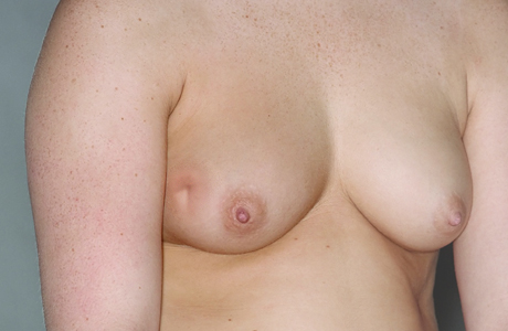 Photo of chest after lumpectomy