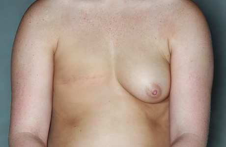 Photo of chest after mastectomy