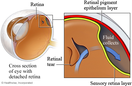 Picture of a detached retina