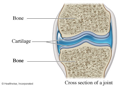 Picture of cartilage (cross section of a joint)
