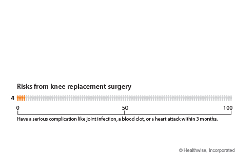 Chart showing risks from knee replacement surgery