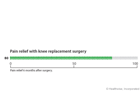 Chart showing satisfaction with knee replacement surgery