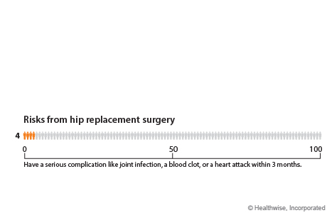 Chart of risks from hip replacement surgery