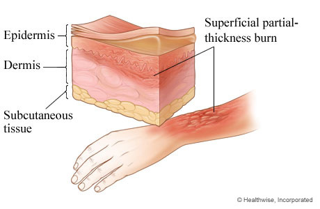 Second-degree burn: superficial partial-thickness burn