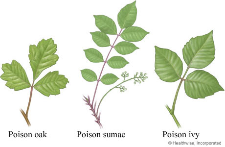 Picture of poisonous ivy, oak, and sumac leaves