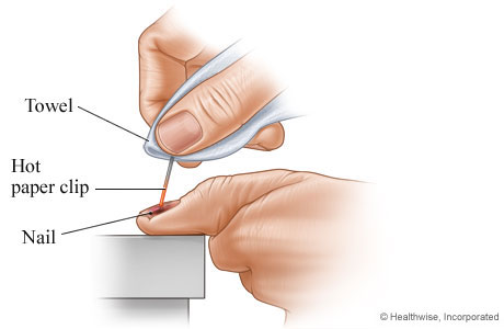 How to drain blood from under a nail