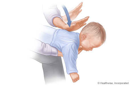 Picture of choking rescue procedure (Heimlich maneuver) with baby facedown