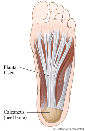 Picture of the plantar fascia (ligament in foot)