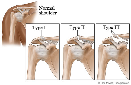 Picture of type I, type II, and type III shoulder separation injuries