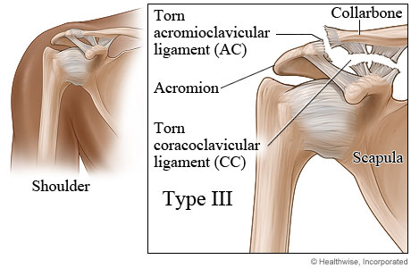 Picture of type III shoulder separation