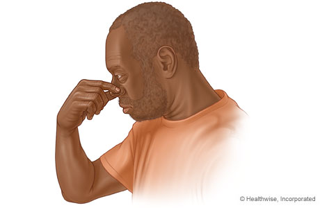 Picture of a man pinching his nose to stop a nosebleed