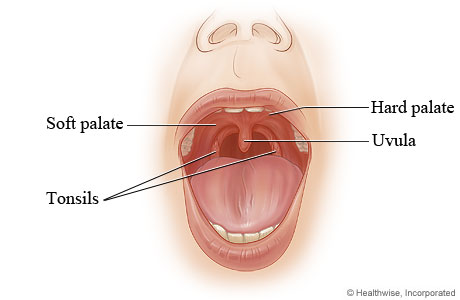 Picture of the hard palate and soft palate