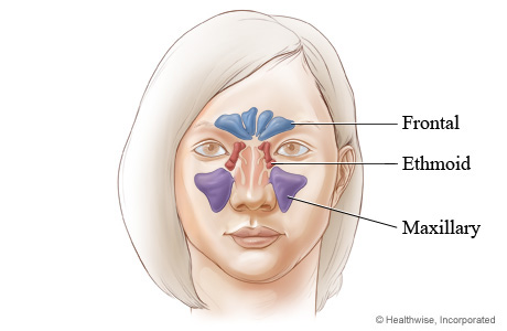 Picture of where facial sinus cavities are located (front view)