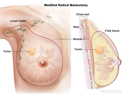 Modified radical mastectomy. The drawing on the left shows the removal of the breast, most or all of the lymph nodes under the arm, the lining over the chest muscles and sometimes part of the chest wall muscles. The drawing on the right shows a cross-section of the breast including the chest wall (ribs and muscle), fatty tissue, and the tumor.