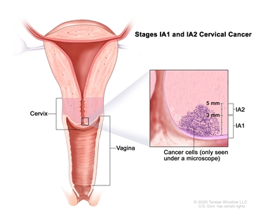 Stage IA1 and IA2 cervical cancer; drawing shows a cross-section of the cervix and vagina. An inset shows cancer in the cervix that is up to 5 mm deep, but not more than 7 mm wide.