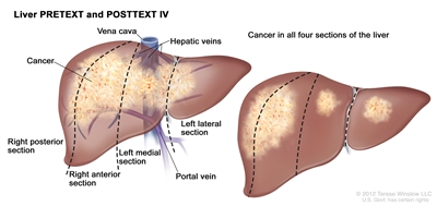 Liver PRETEXT Stage 4; drawing shows two livers. Dotted lines divide each liver into four vertical sectors that are about the same size. In the first liver, cancer is shown across all four sectors. In the second liver cancer is shown in the two sectors on the left and spots of cancer are shown in the two sectors on the right.